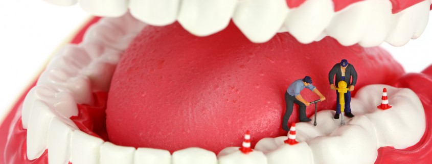 urgencias endodoncia